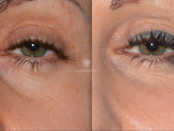 filler occhiaie prima e dopo