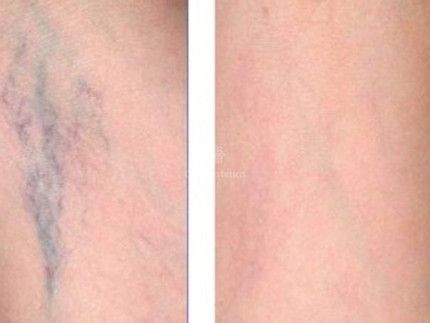Trattamento capillari risultati