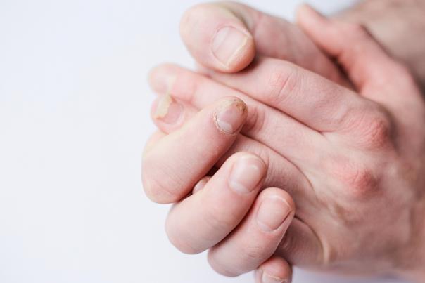 contagio micosi unghie