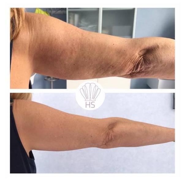 Trattamento braccia con laserterapia