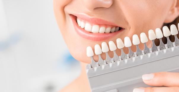 denti gialli fattori e cause