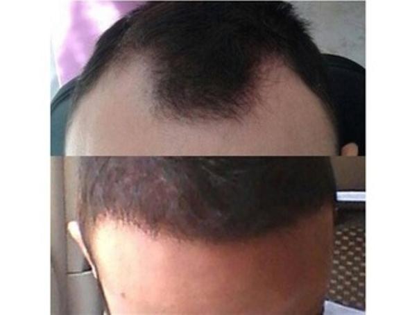 Risultati trattameno anticaduta capelli