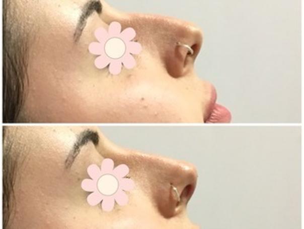 ^Prima e dopo iniezione di acido ialuronico naso