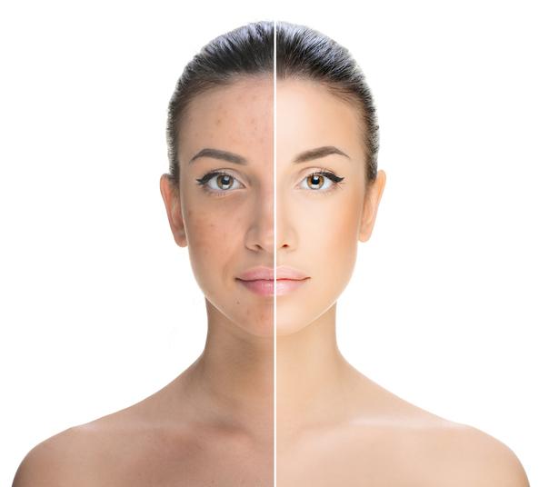Miglioramento del tono della pelle