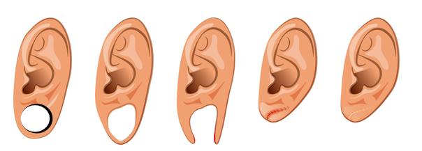 ricostruzione lobo orecchio