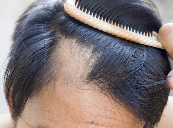 Perchè cadono i capelli