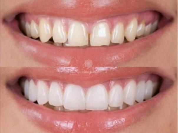 Installazione faccette dentali estetiche