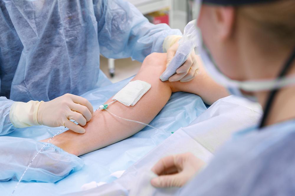 Chirurgia per eliminare vene varicose