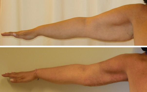 Liposuzione braccia: prima e dopo
