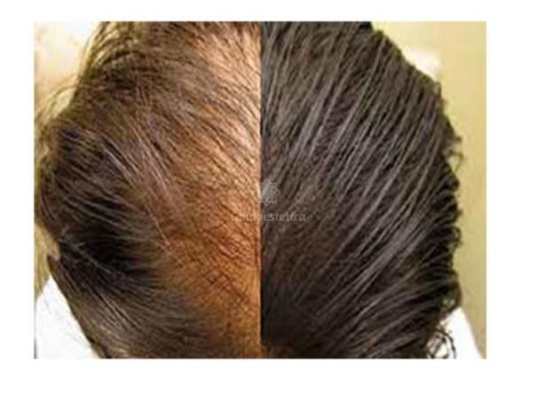 Trapianto dei capelli effetti