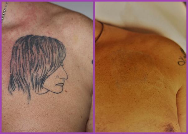 Eliminazione tatuaggio con laser