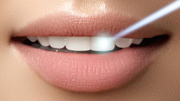 Laser Dentale principali utilizzi