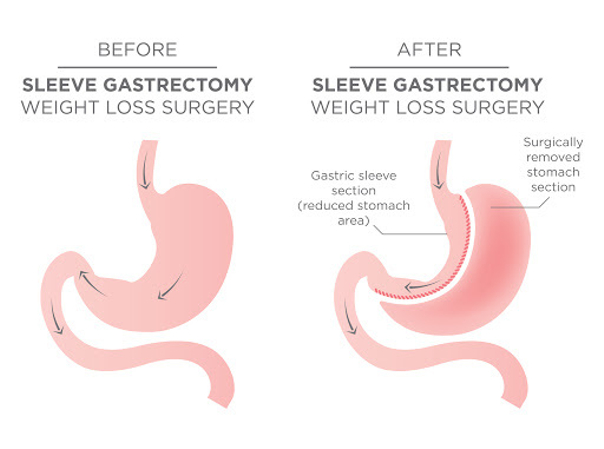 Il bypass gastrico