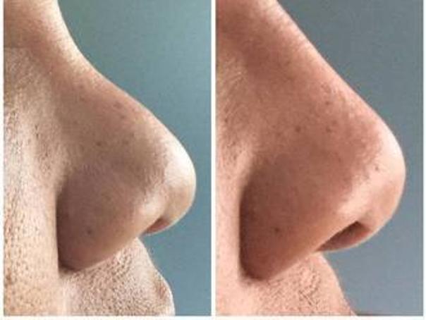 Prima e dopo rinofiller