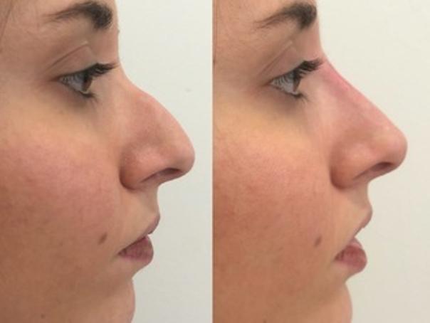 Correzione non chirurgica di una gobba del naso