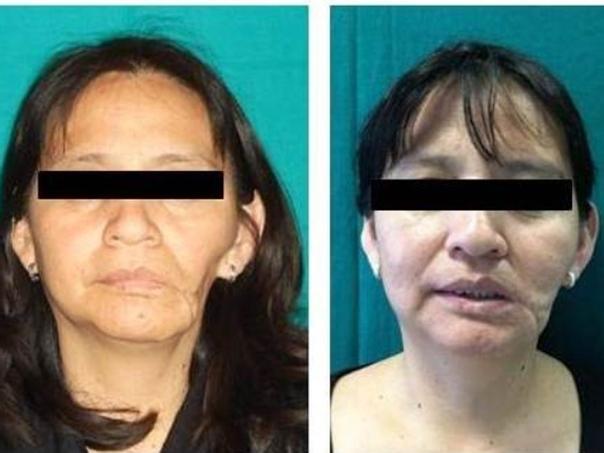 Prima e dopo intervento di chirurgia ricostruttiva