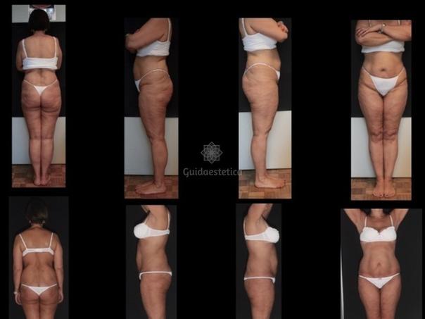 Prima e dopo Carbossiterapia