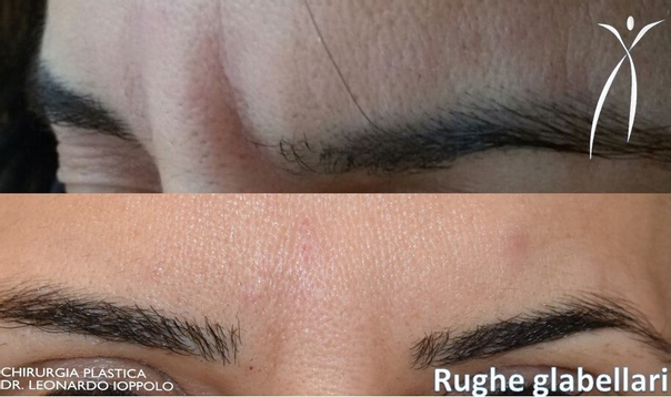 Esempio di eliminazione rughe frontali con botox