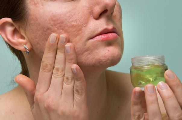 rimedi e cause cicatrici acne