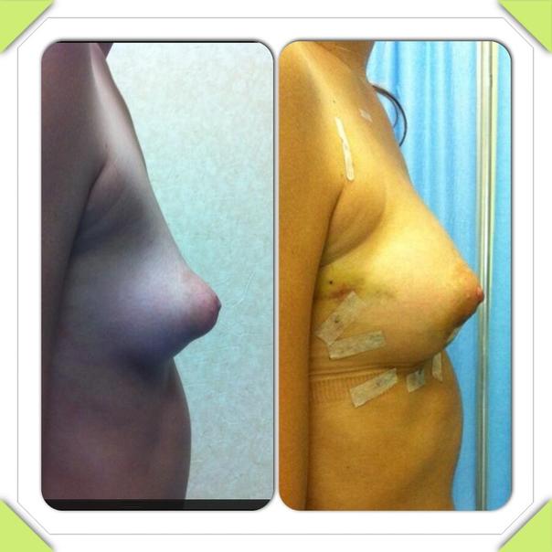 Prima e dopo intervento di liposcultura del seno