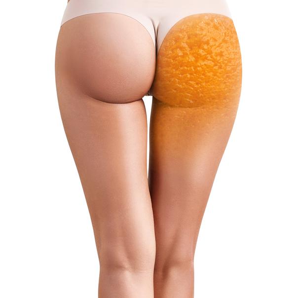 Eliminare cellulite e buccia d'arancia