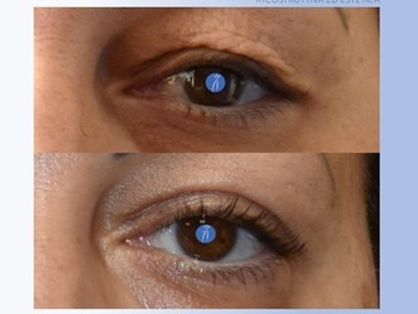 Blefaroplastica prima e dopo risultati