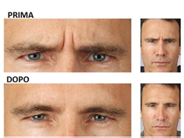 Botox su volto maschile