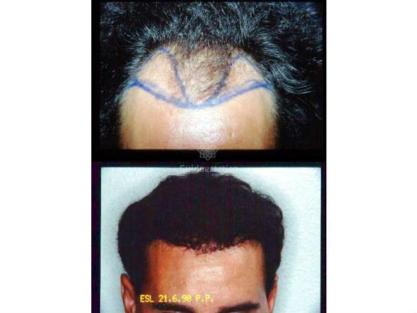 Trapianto capelli risultati e postoperatorio