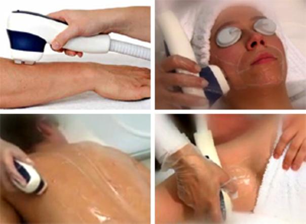 Depilazione laser completa del corpo