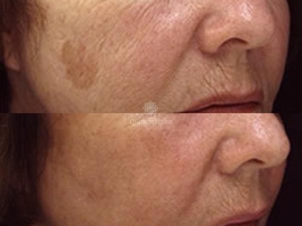 Trattamenti macchie della pelle risultati