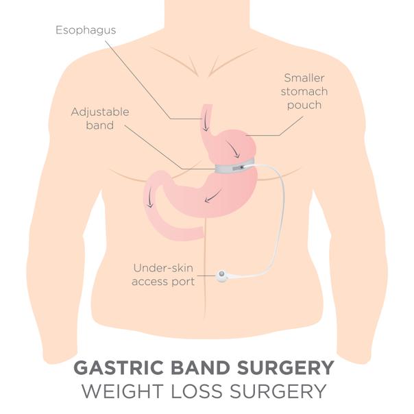 come funziona bendaggio gastrico