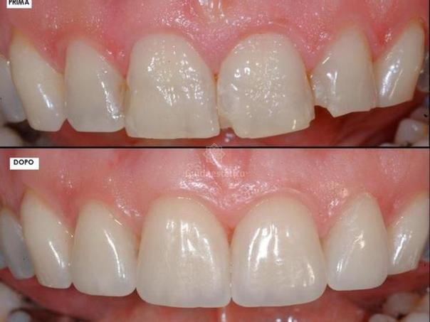 RIsultati estetica dentale