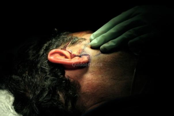 Otoplastica procedura