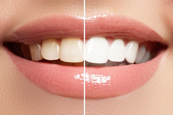 RIsultati sbiancamento dentale