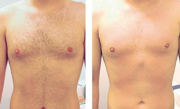 Prima e dopo epilazione laser