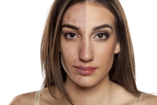 Trattamento dell'acne con laserterapia