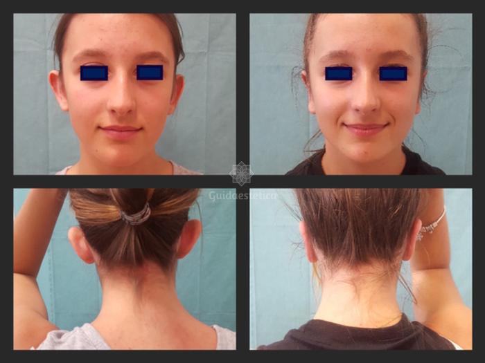 Prima e dopo otoplastica
