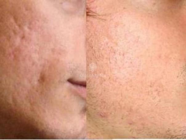 Miglioramento delle cicatrici acneiche dopo needling