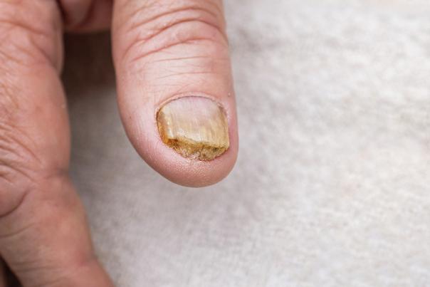 rischi micosi unghie