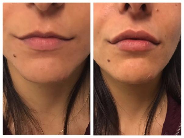 Risultati aumento labbra