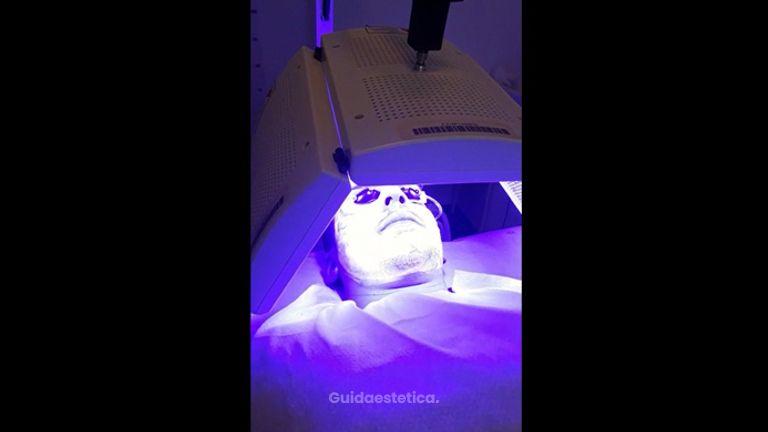 Terapia biofotonica per acne