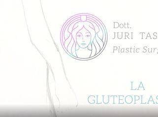 Che cosè la gluteoplastica. Risponde il Dott. Juri Tassinari