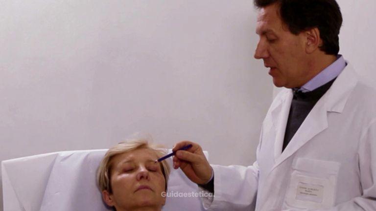 La rinoplastica col Dott. Todde
