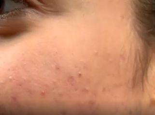 Dott.ssa Graham: Video esperienza acne