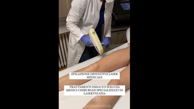 Depilazione laser - Studio medico BiospheraMed