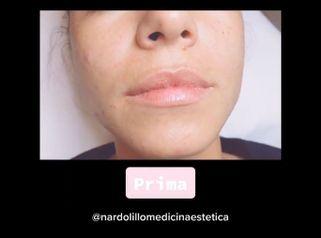 Filler labbra - Dott.ssa Paola Nardolillo