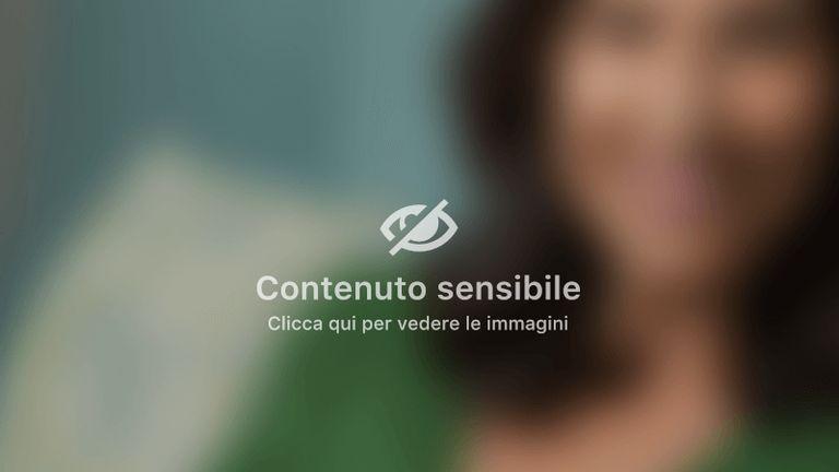 1.Del Gaudio & Partners: Chirurgia del corpo_ Mastoplastica Additiva