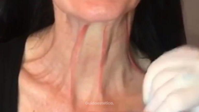 Post trattamento rughe collo