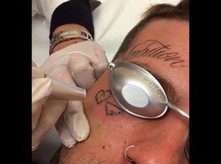 Dott.sa Sara Russo: Rimozione tatuaggio