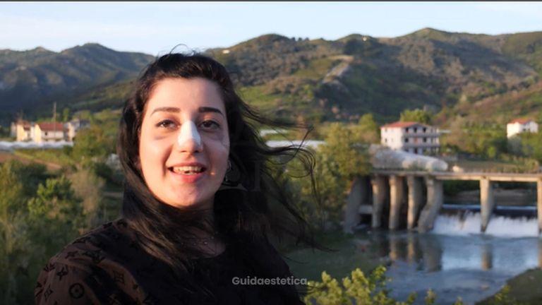 Clinica Keit: video esperienza Veronica